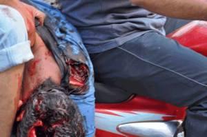 Salah seorang korban kekejian tentara.